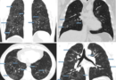 """COVID-19 poate afecta sănătatea pe termen lung: evaluările efectuate în proiectul """"Grijă pentru colegi"""" arată consecințele infecției"""